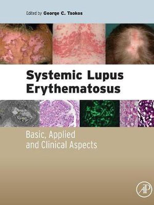 personal impact of systemic lupus erythematosus Systemic lupus erythematosus //wwwcambridgeorg/core/journals/bjpsych-advances of untreated sle-related psychosis and its negative impact on both patient.