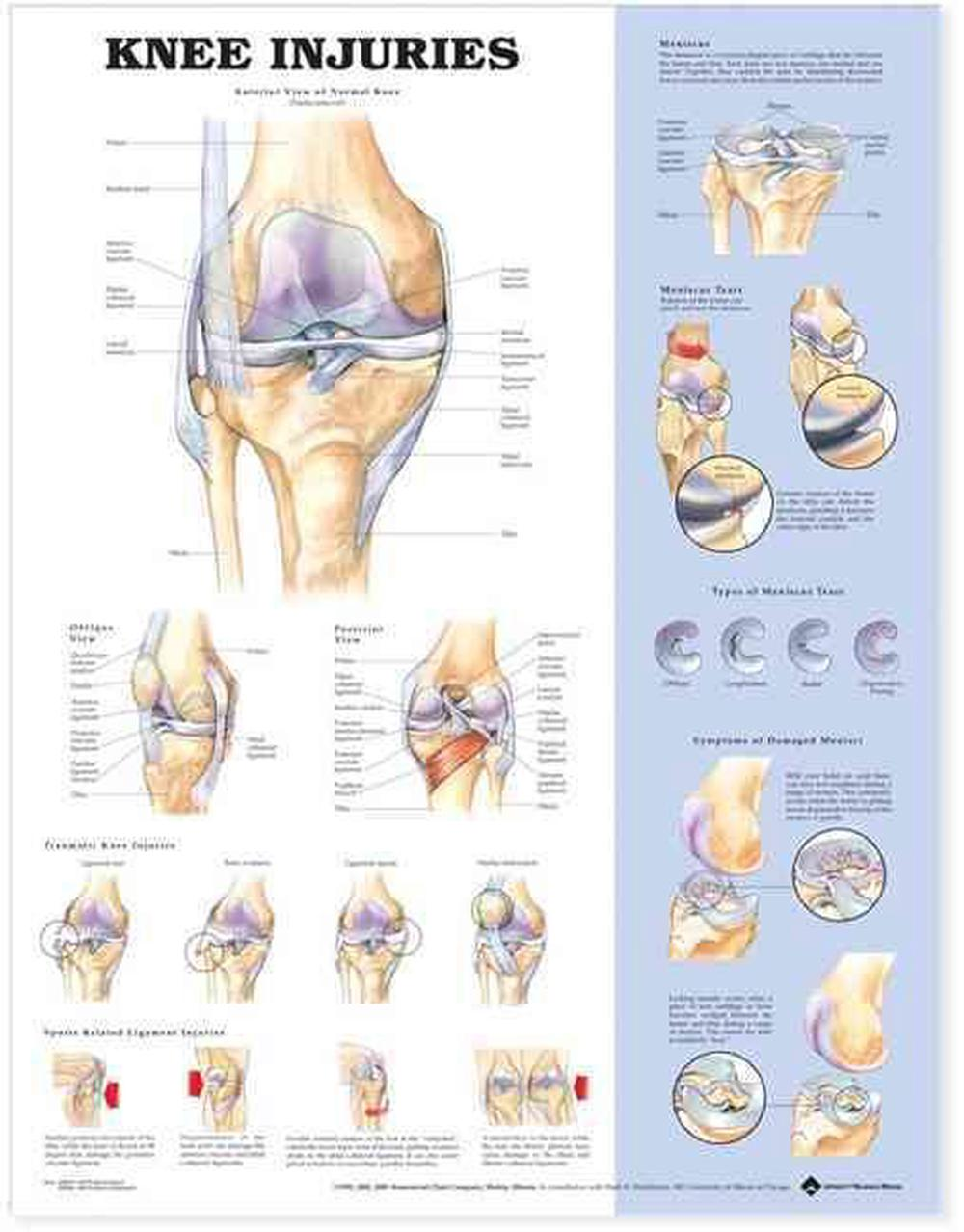 Knee Injuries Anatomical Chart By Company 9781587797569 Online At The Nile